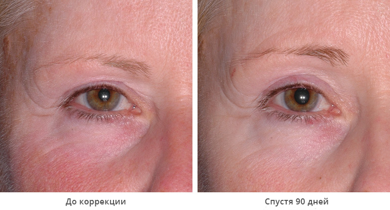 beforeafter_brow10-1