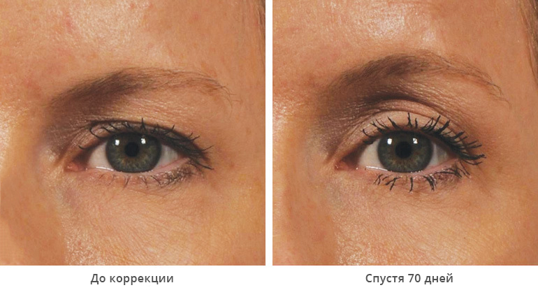 beforeafter_brow12-1
