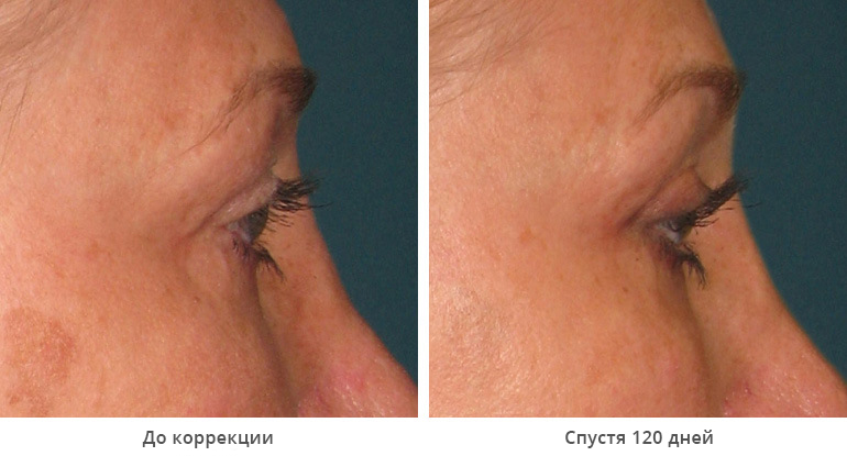 beforeafter_brow3 (1)