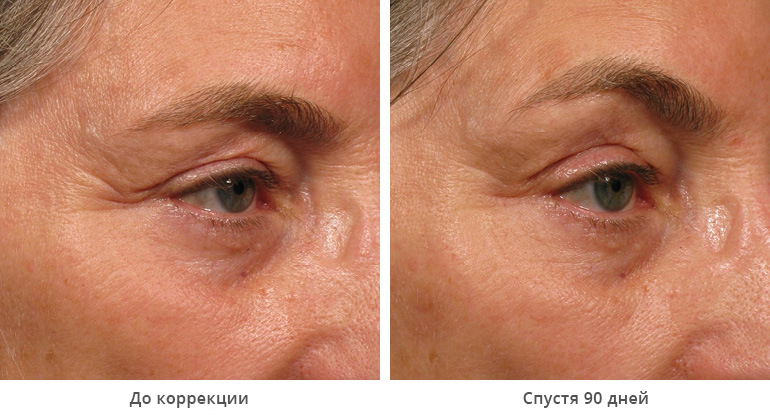 beforeafter_brow5-1