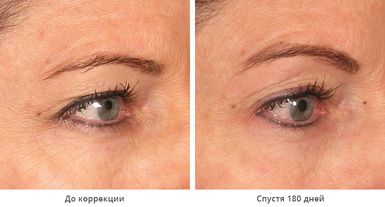 beforeafter_brow8-1