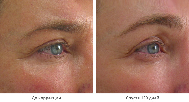 beforeafter_brow9-1